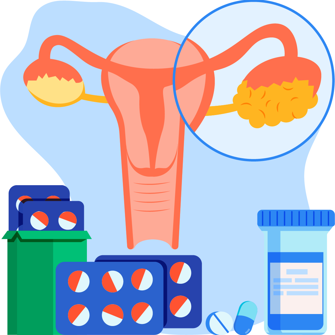 Detecing early warning sign of ovarian cancer